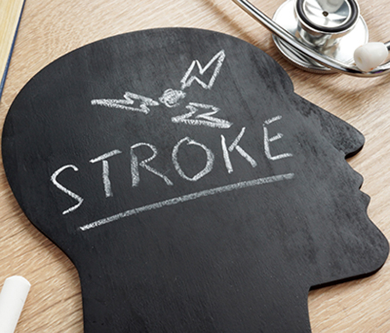 Don't hesitate … think FAST when it comes to stroke symptoms